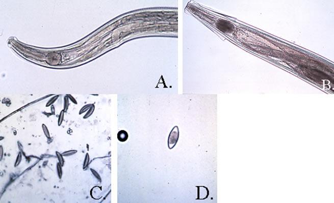 a bélben található a pinworms emberi ascaris fertőzés