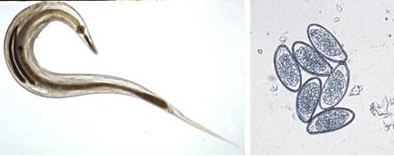 tisztítsa meg testét a parazitaellenes szerektől a nyelv papilláinak kezelése